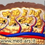 Powstawanie Cellulitis – cellulit